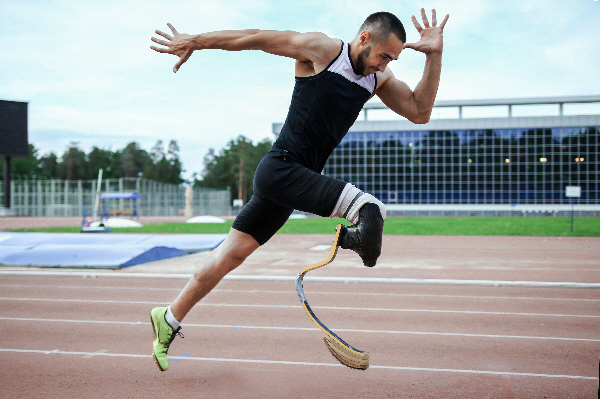limb loss experts in prosthetic orthotic devices